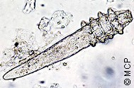 Demodex spp. Picture from M. Campos Pereira