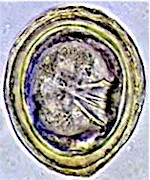 Egg of Choanotaenia infundibulum. Picture from www.rvc.ac.uk