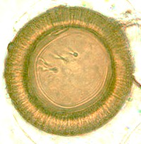 Egg of Taenia spp. The hooks are clearly visible. Picture from www.dpd.cdc.gov.