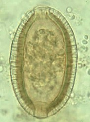 Egg of Capillaria philippinensis. Picture from www.dpd.cdc.gov
