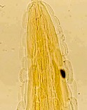 Anterior end of a Gongylonema adult, showing the typical cuticular platelets. Picture from www.gsaygi.4t.com
