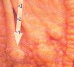 Nodules in the stomach mucosa caused by Hyostrongylus rubidus. © J. Kaufmann / Birkhäuser Verlag
