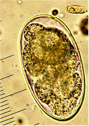 Egg of Hyostrongylus rubidus. Picture from www.fiatlux.egloos.com