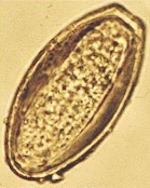 Egg of Oxyuris equi. Image taken from www3.vetagro-sup.fr