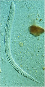 Larva of Strongyloides stercoralis. Picture from Wikipedia Commons.