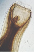 Head of Strongylus vulgaris showing the buccal capsule. Image from wikipedia.commons