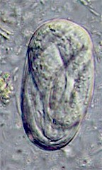 Egg of Strongyloides spp. Picture from www.wormbook.org