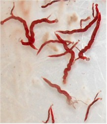 Syngamus trachea adult worms. Picture from https://datashare.is.ed.ac.uk/handle/10283/2201.